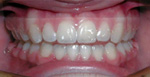 Clear Removable Retainers